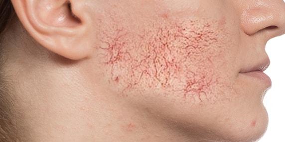 Laser & Skin Clinic Melbourne   Fresh Skin Canvas   Call