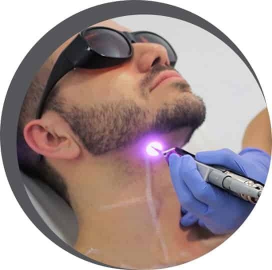 laser-melbourne-img-1