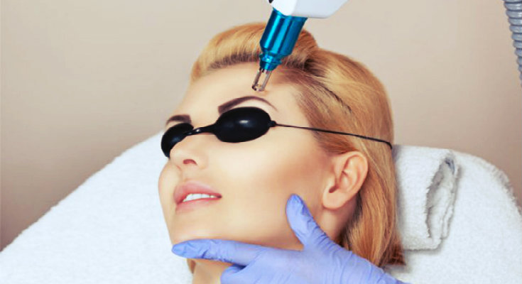 a woman getting laser treatment done on face