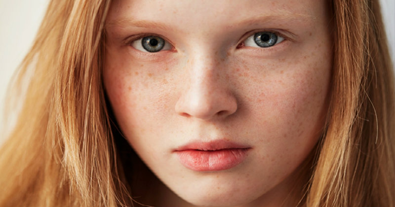 young girl with freckles on face