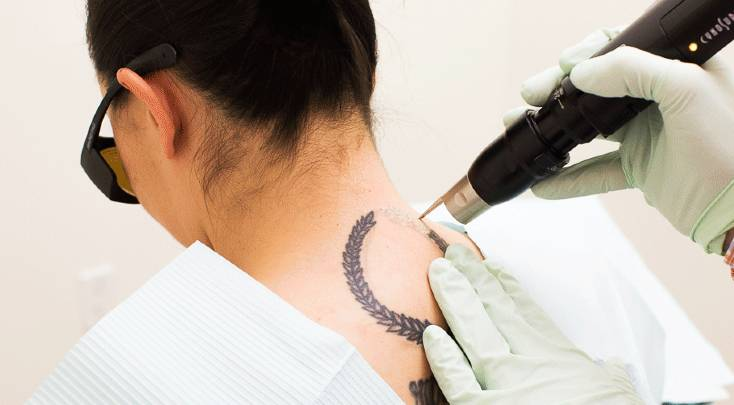 A woman with tattoo on her back getting treatment done in clinic
