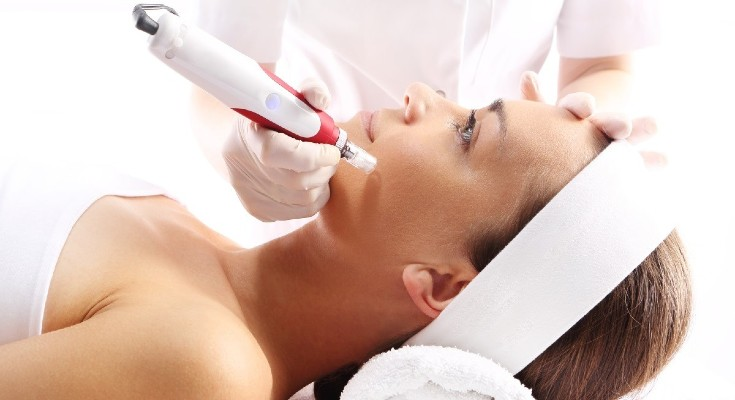 Microneedling-Treatment