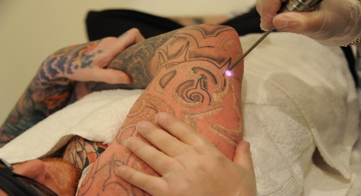 a man is getting the laser tattoo removal