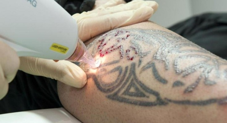 a young man is having a black tattoo